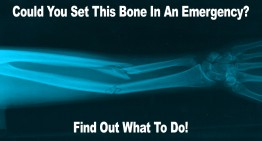 Could You Set A Bone In An Emergency?