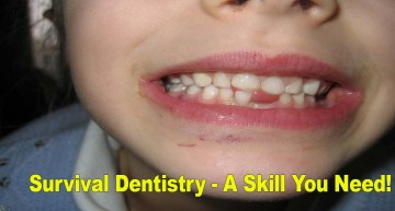 Survival Dentistry – A Skill You Need!