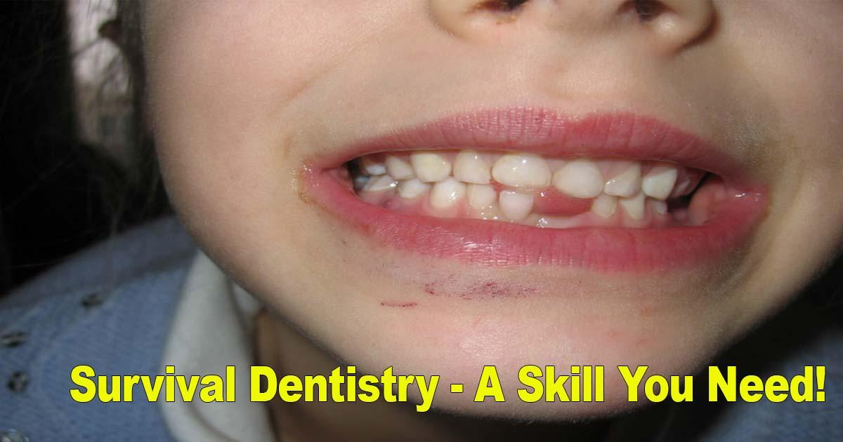 Survival Dentistry