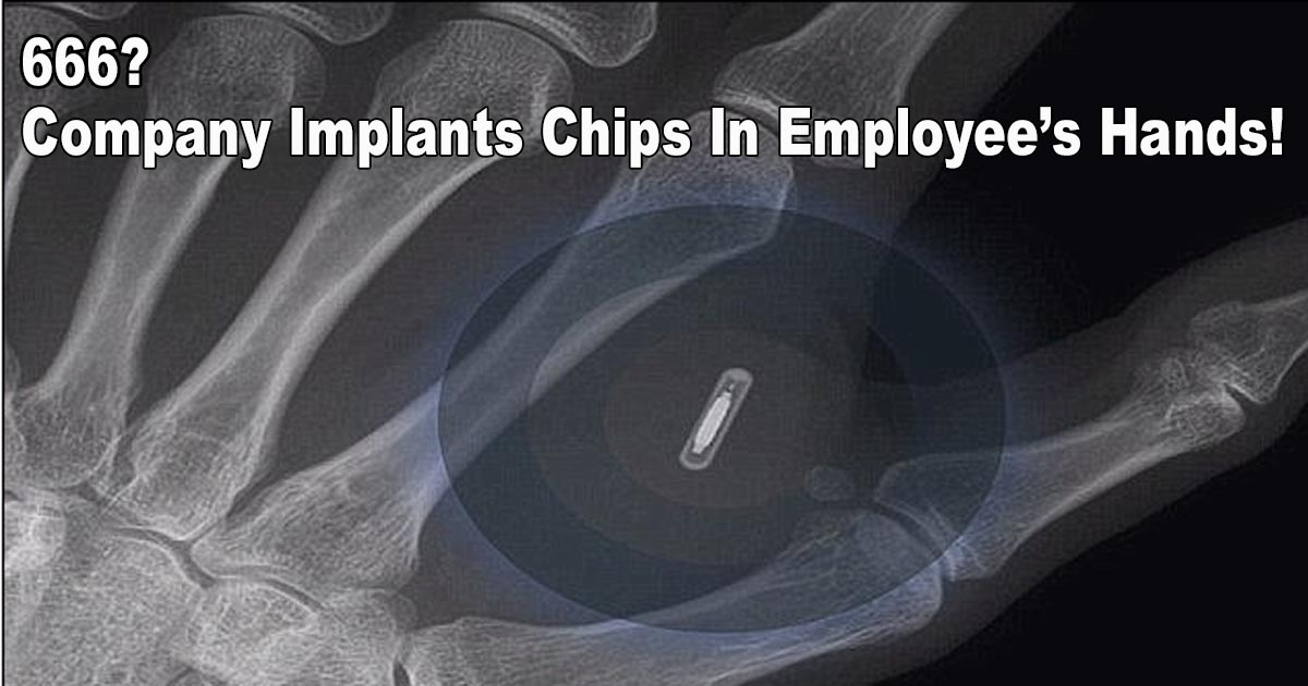Company Implants Chips
